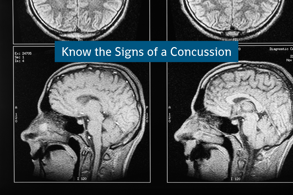Prevent Summer Injuries: Know The Signs of a Concussion